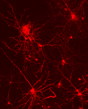 Dye-labeled cortical neurons